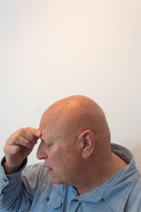 Kopf des älteren Mannes in der Profilhand zur Stirn, Kopfschmerzen, kahl, Alopezie, Chemotherapie, Krebs lizenzfreie stockbilder