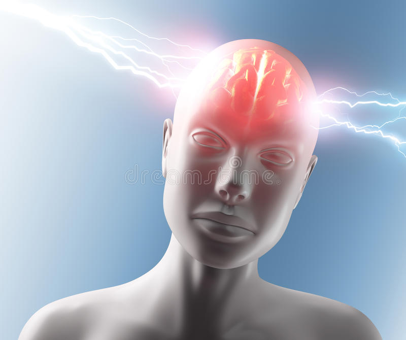 Kopfschmerzen stock abbildung
