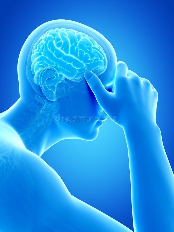 Kopfschmerzen/Koller lizenzfreie abbildung