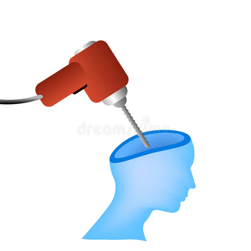 Kopfschmerzenvektorkonzept vektor abbildung