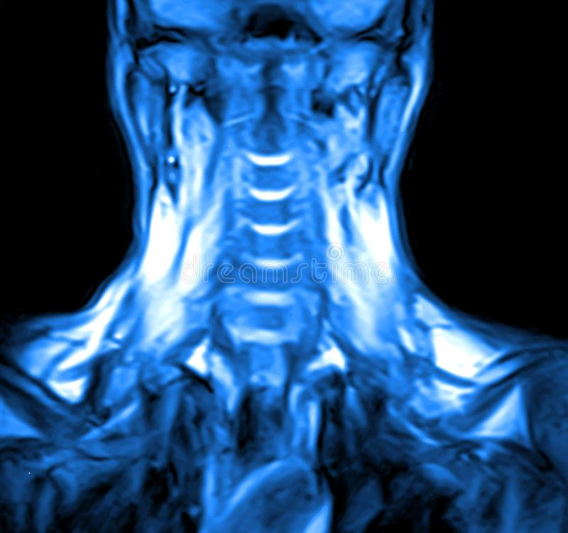 Kopiering f?r magnetisk resonans av den cervikala ryggen vektor illustrationer