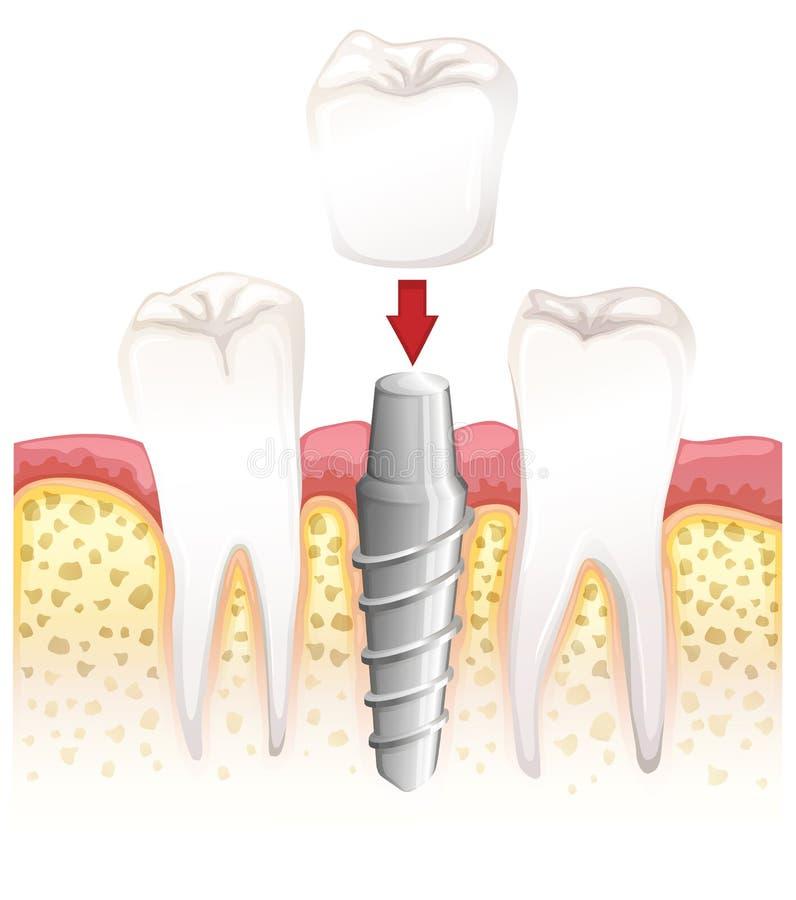 Korony stomatologiczna procedura royalty ilustracja