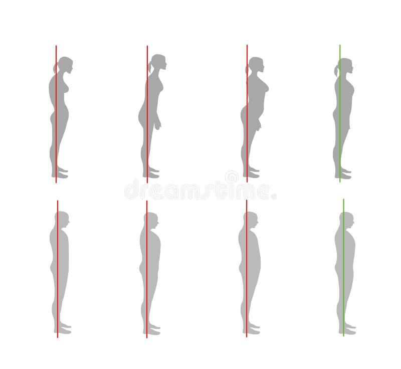 Korrekte Ausrichtung des menschlichen Körpers in der stehenden Lage für gute Persönlichkeit und gesund vom Dorn und vom Knochen G lizenzfreie abbildung