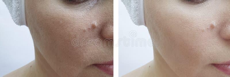 Korrigering för korrigering för behandling för kvinnaframsidaskrynklor före och efter lyftande arkivfoto