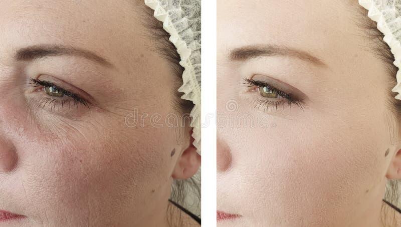 Korrigering för borttagning för resultat för problem för dermatologi för kvinnaskrynklaregenerering lyftande före och efter royaltyfri foto