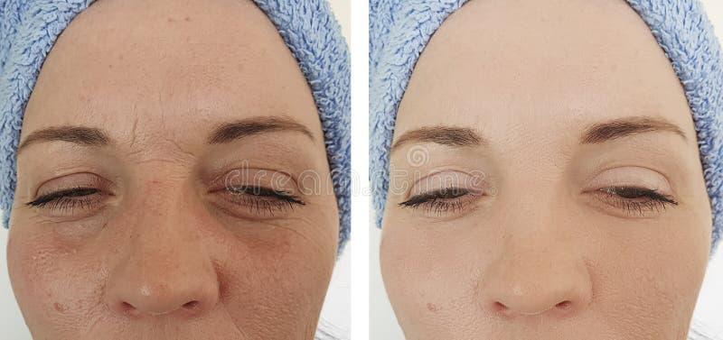 Korrigering för borttagning för resultat för problem för dermatologi för terapi för kvinnaskrynklaregenerering lyftande före och  royaltyfria bilder