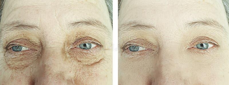 Korrigering för borttagning för skrynklor för gammal kvinna före och efter fotografering för bildbyråer