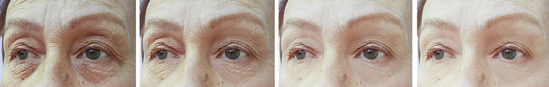 Korrigering för borttagning för korrigering för skrynklor för gammal kvinna före och efter arkivbilder