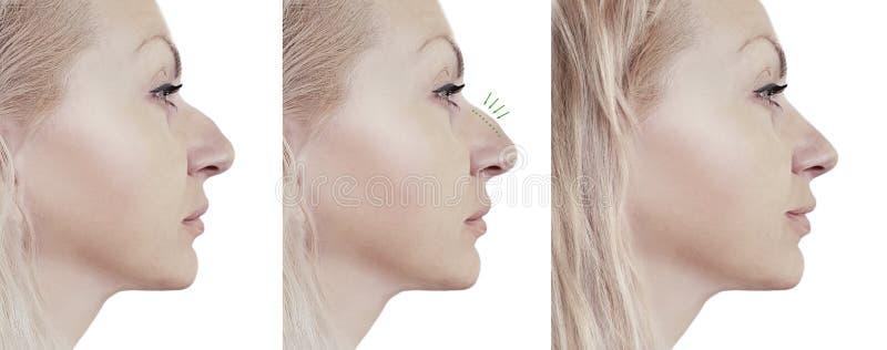 Korrigering för flickanäsa före och efter arkivfoto