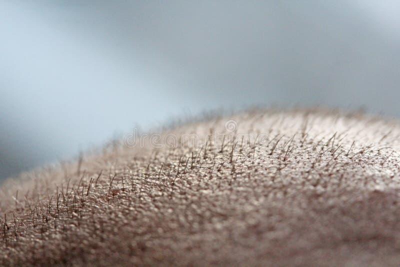 Kort hår på ett huvudslut upp Skalpera mannens huvud bali skallig man Problem med hårtillväxt på huvudet arkivfoto