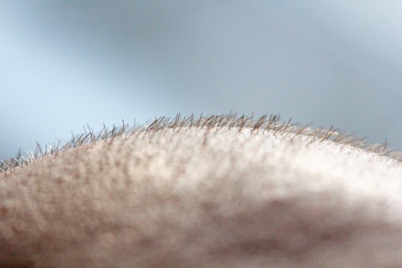 Kort hår på ett huvudslut upp Skalpera mannens huvud bali skallig man Problem med hårtillväxt på huvudet fotografering för bildbyråer
