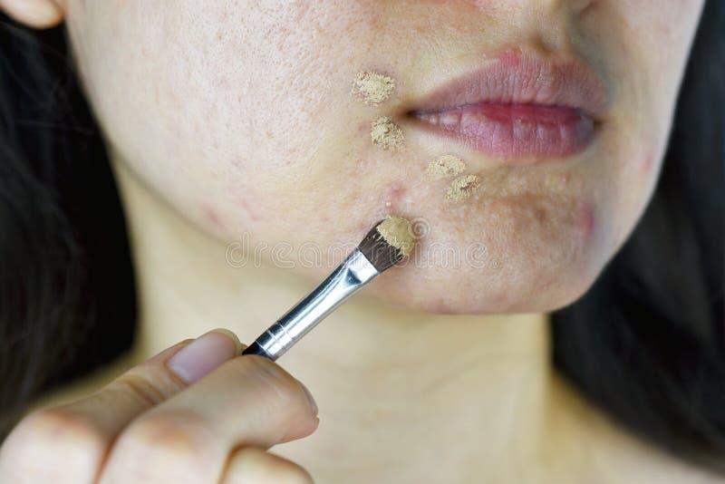 Kosmetik Akne, Asiatin, die Abdeckstiftmake-up anwendet, um Aknegesichtshautproblem zu verstecken stockfoto