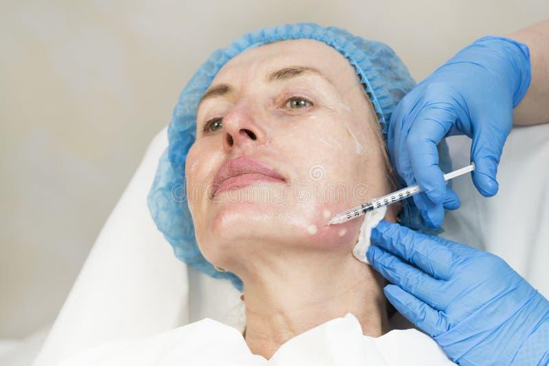 Kosmetische behandeling met injectie royalty-vrije stock foto