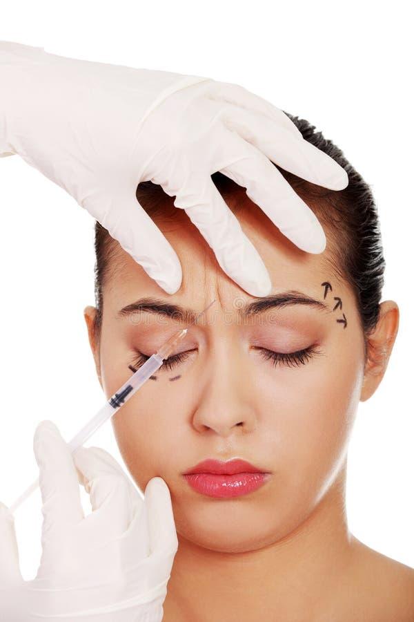 Kosmetische botoxinjectie in het vrouwelijke gezicht stock afbeeldingen