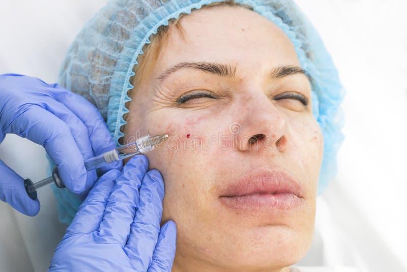 Kosmetische chirurgie, geneeskundeprocedure voor een volwassen vrouw stock fotografie