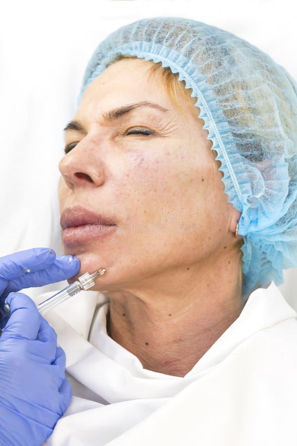 Kosmetische chirurgie, geneeskundeprocedure voor een volwassen vrouw stock afbeeldingen