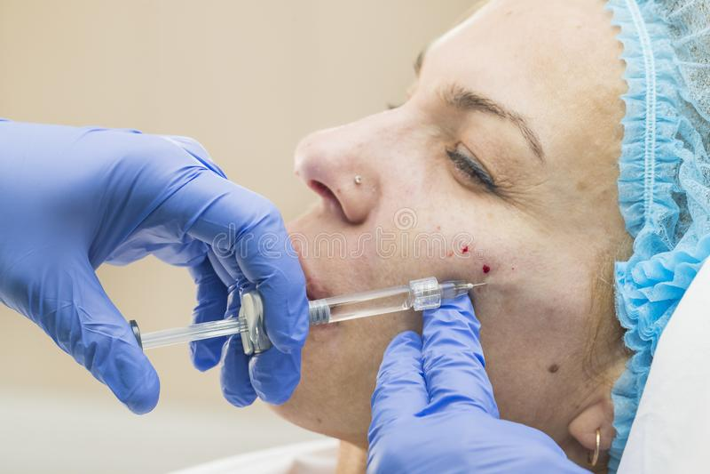 Kosmetische chirurgie, geneeskundeprocedure voor een volwassen vrouw royalty-vrije stock foto's