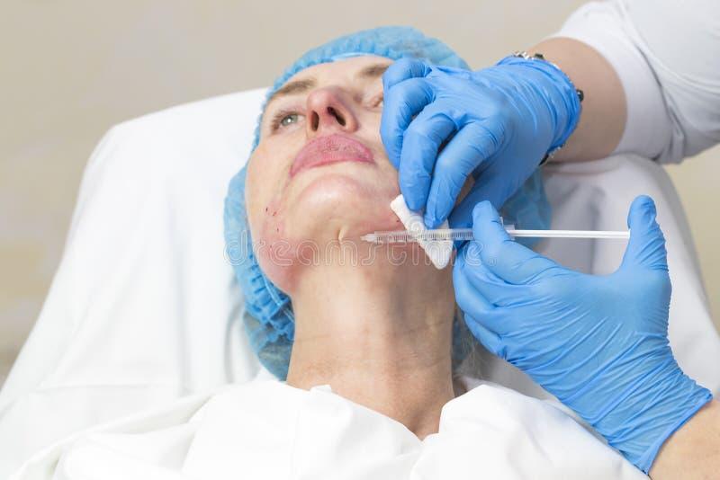 Kosmetische chirurgie, geneeskundeprocedure voor een volwassen vrouw stock afbeelding