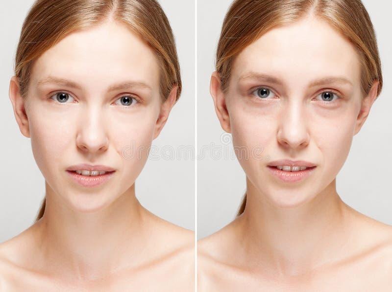 Before and after kosmetische verrichting stock afbeeldingen