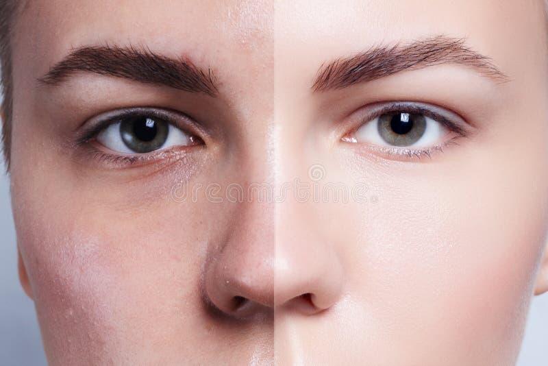 Before and after kosmetische verrichting Jong mooi vrouwenportret stock afbeelding