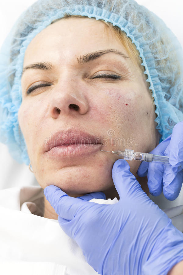 Kosmetisk behandling med injektionen royaltyfria bilder