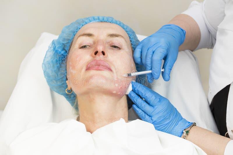 Kosmetisk behandling med injektionen royaltyfri bild