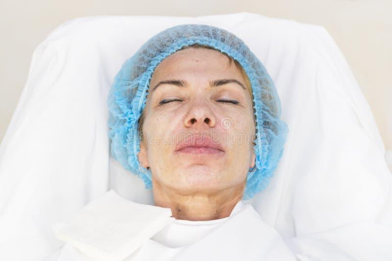 Kosmetisk kirurgi, medicintillvägagångssätt för en vuxen kvinna arkivfoton