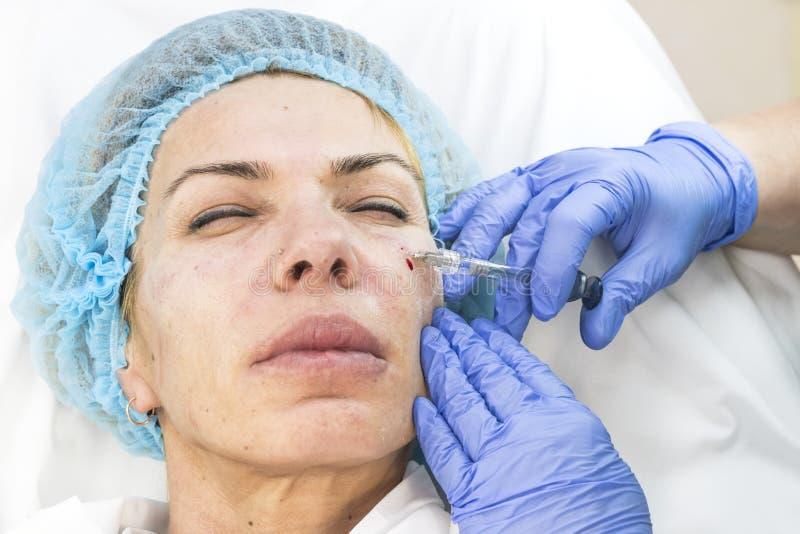 Kosmetisk kirurgi, medicintillvägagångssätt för en vuxen kvinna royaltyfri foto