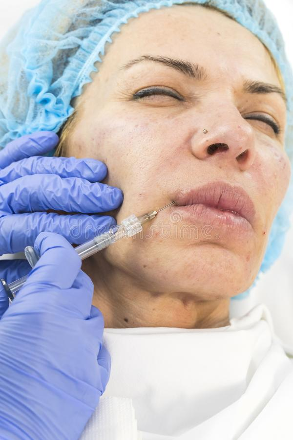 Kosmetisk kirurgi, medicintillvägagångssätt för en vuxen kvinna arkivbilder