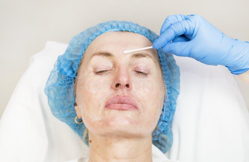 Kosmetisk kirurgi, medicintillvägagångssätt för en vuxen kvinna arkivfoto