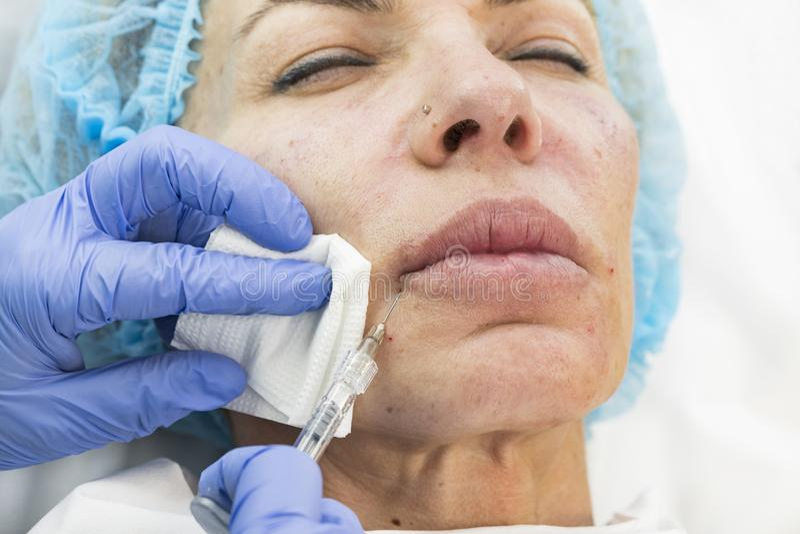 Kosmetisk kirurgi, medicintillvägagångssätt för en vuxen kvinna royaltyfria foton