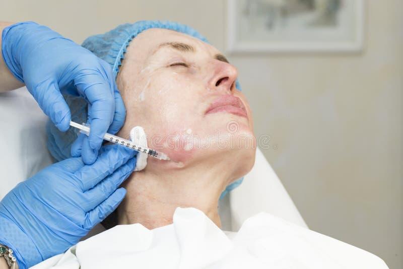 Kosmetisk kirurgi, medicintillvägagångssätt för en vuxen kvinna royaltyfria bilder