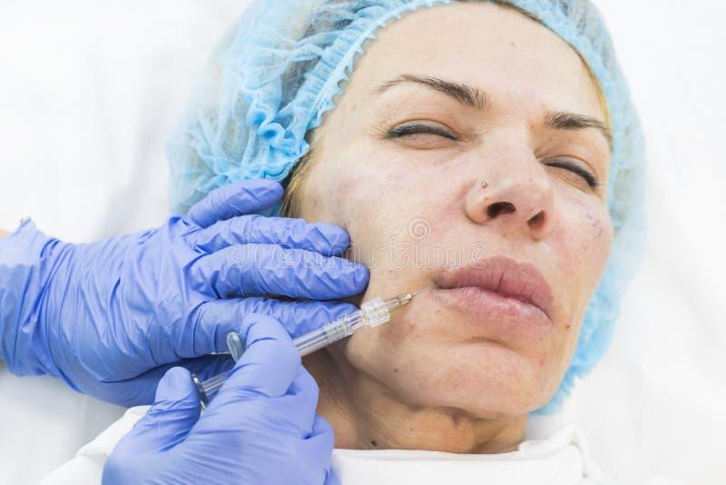 Kosmetisk kirurgi, medicintillvägagångssätt för en vuxen kvinna arkivbild