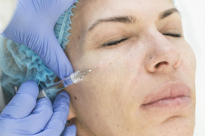 Kosmetisk kirurgi, medicintillvägagångssätt för en vuxen kvinna fotografering för bildbyråer