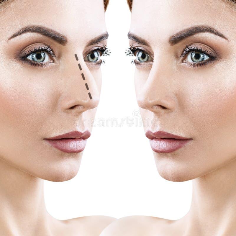 Kosmetisk näskirurgi för kvinna före och efter royaltyfri fotografi
