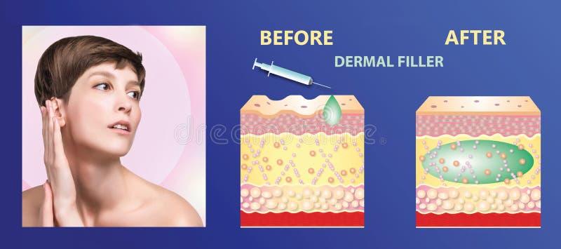 Kosmetiskt utfyllnadsgods eller dermal utfyllnadsgods arkivfoto