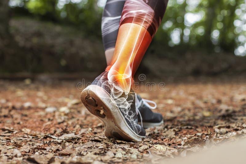Kostka bólu sportów urazów pojęcie szczegółowo - zdjęcie stock
