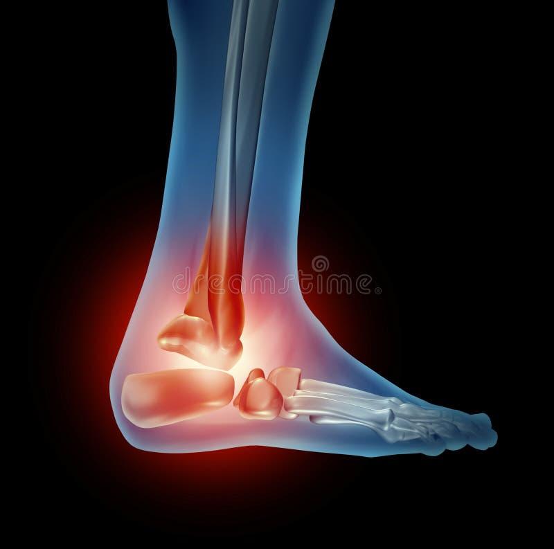 kostki stopy ból royalty ilustracja