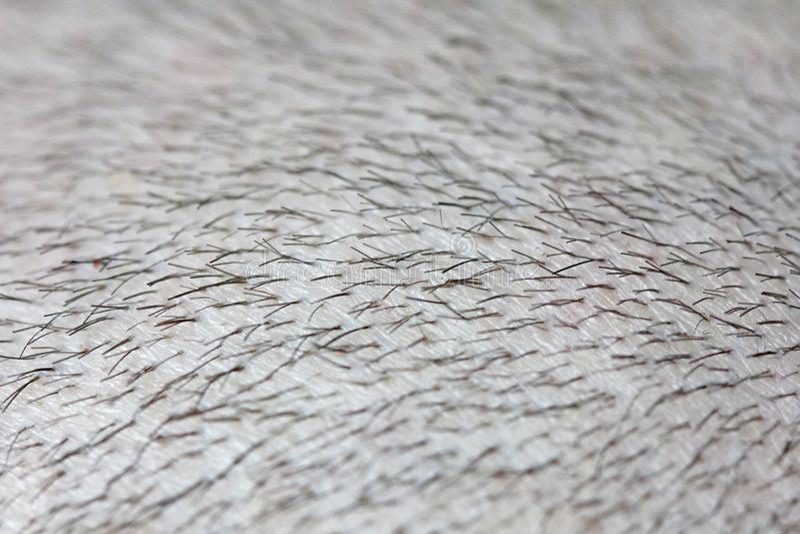 Krótki włosy na kierowniczym zakończeniu w górę Skalpu mężczyzny głowa baldness łysy człowieku Problemy z włosianym przyrostem na obraz royalty free