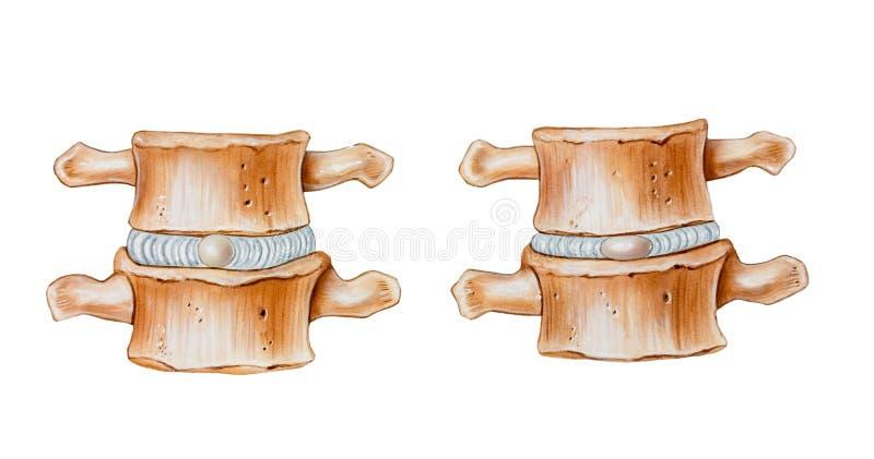 Kręgosłup - Wyściełać funkcję Międzykręgowi dyski ilustracji
