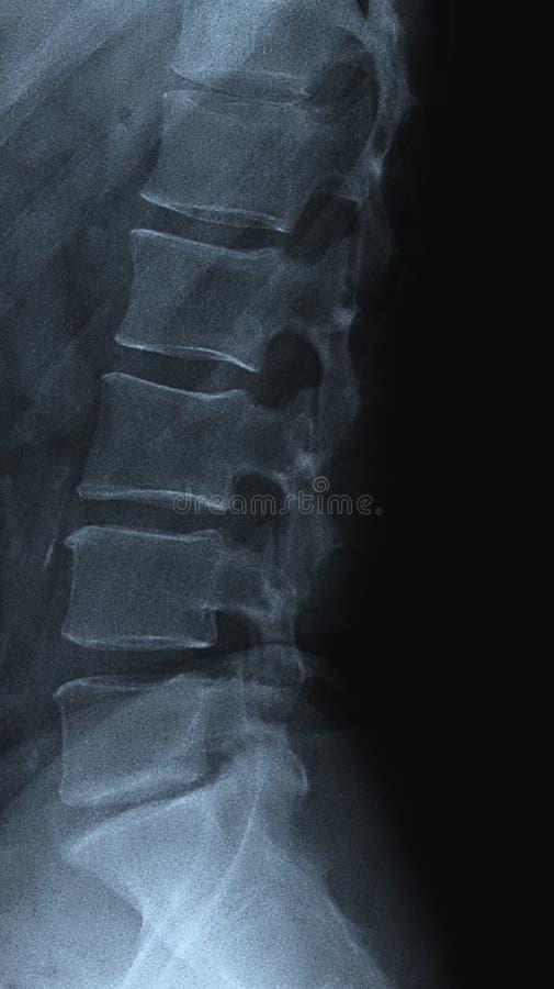 Kręgosłupa radiograph zdjęcie stock