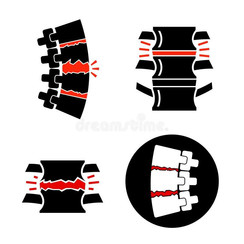 Kr?gos?upa osteoarthritis ikona royalty ilustracja