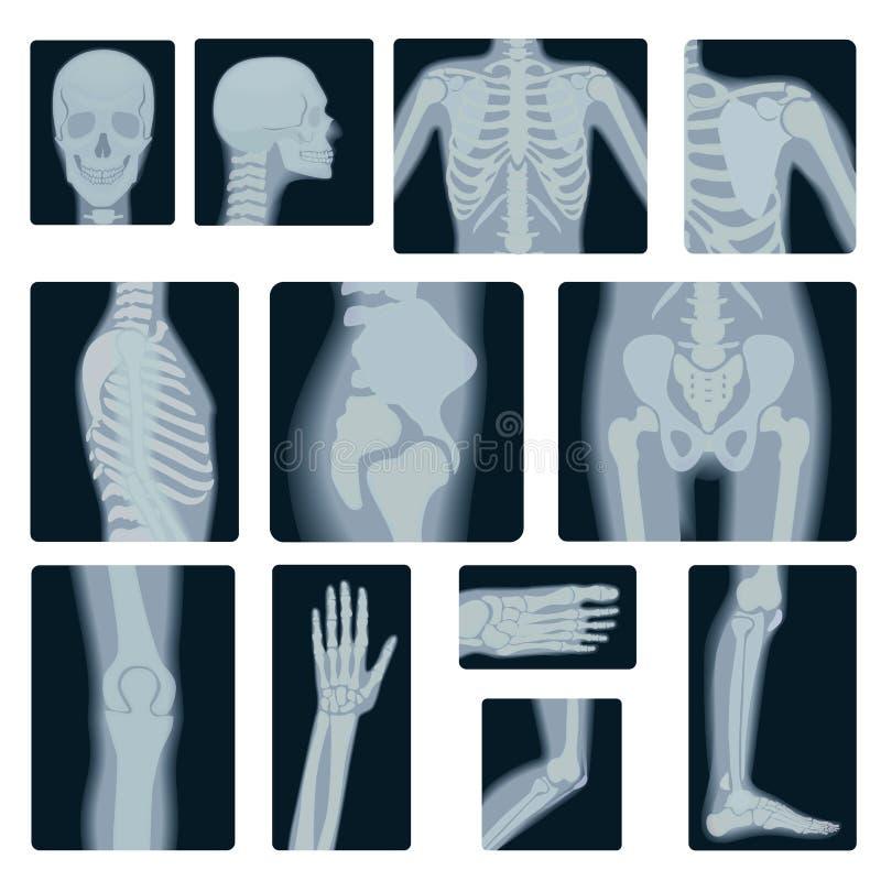 Krańcowej ilości realistyczny wektorowy kolaż ustawiający wiele promieniowanie rentgenowskie strzały Radiologiczna wieloskładniko ilustracji