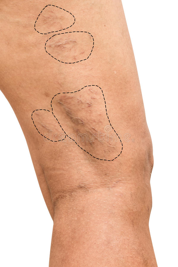 Krampfadern auf Beinfrauen lizenzfreie stockfotos