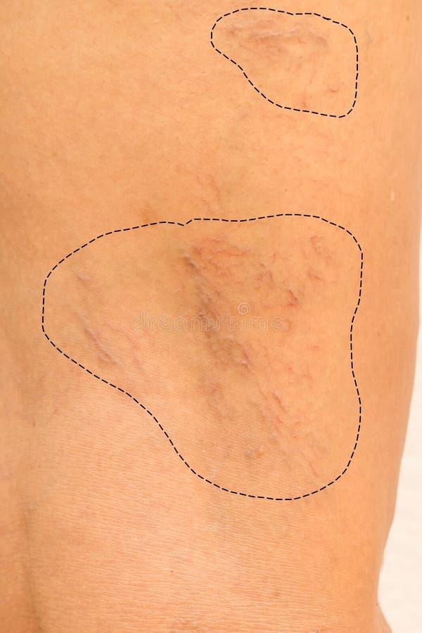 Krampfadern auf Beinfrauen stockbild