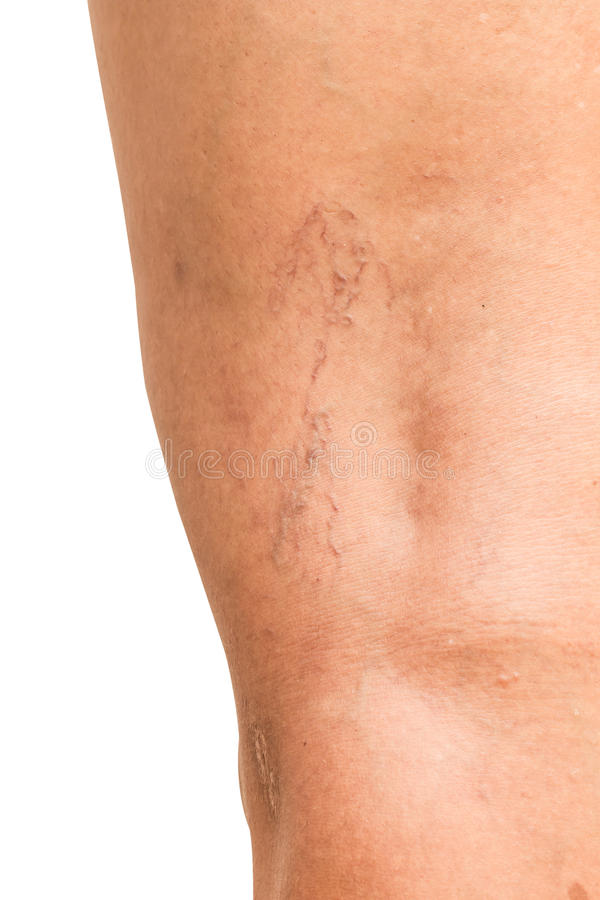 Krampfadern auf den Beinen von Frauen von mittlerem Alter stockbild