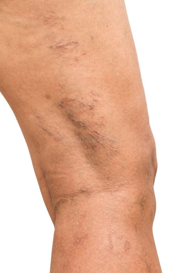 Krampfadern auf den Beinen von Frauen von mittlerem Alter stockfotos