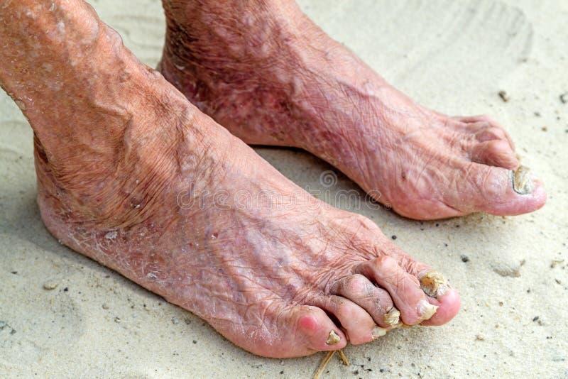 Kranke Beine einer alten Frau stockbilder