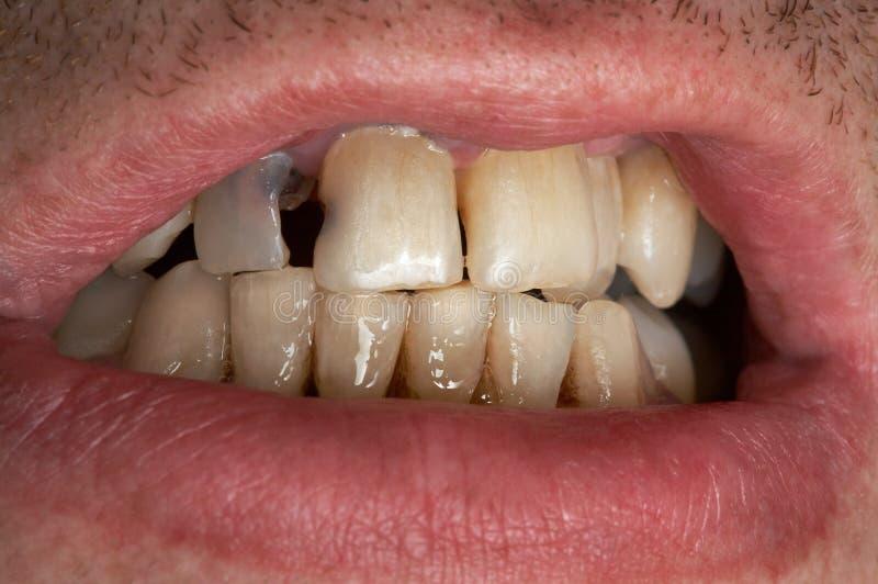 Kranker Zahn lizenzfreies stockbild