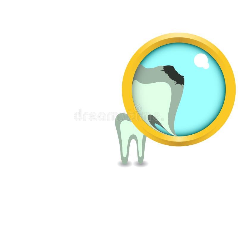 Kranker Zahn in der Zunahme lizenzfreie abbildung
